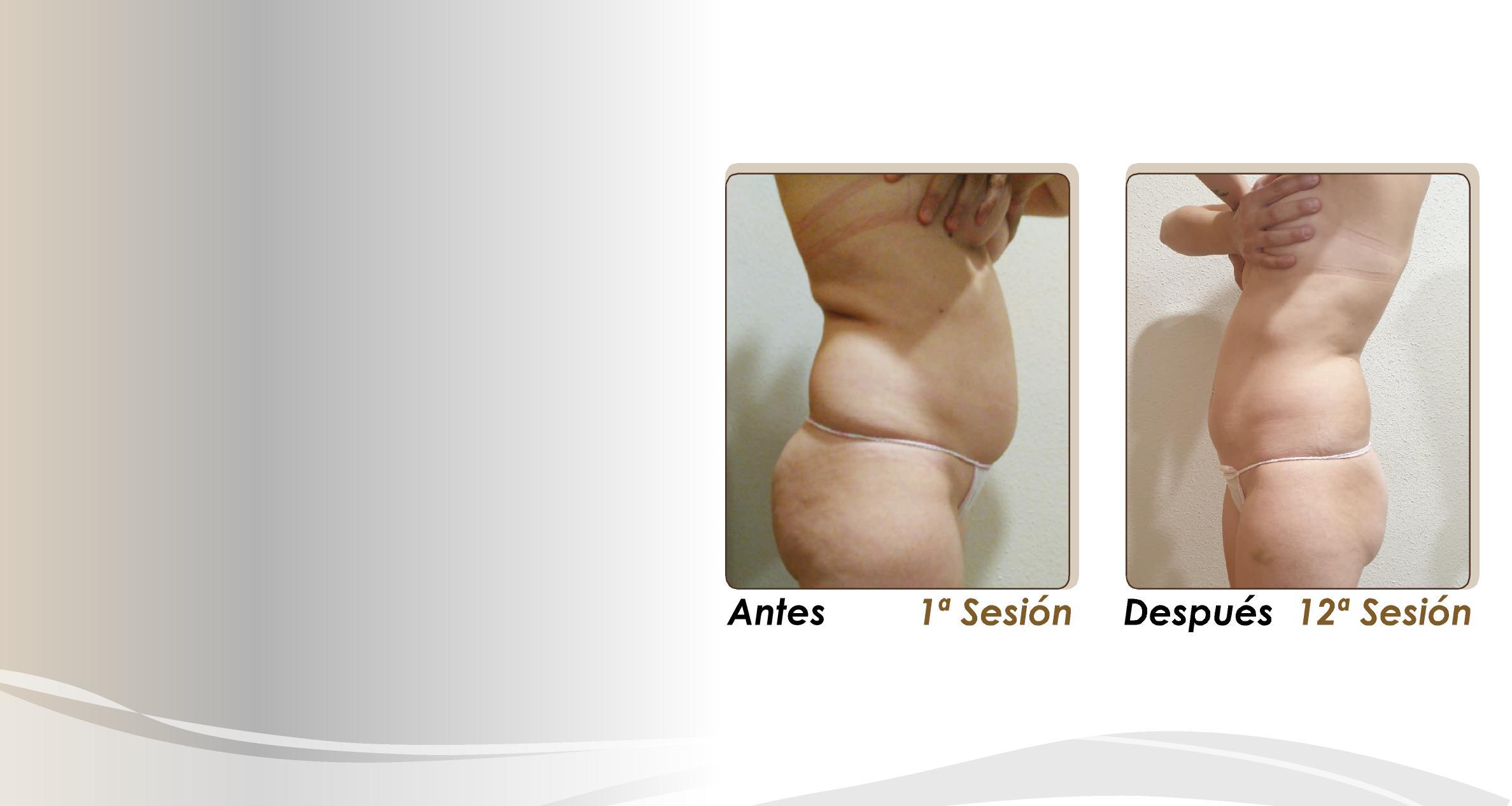 Meso-Vac tratamiento corporal antes y después